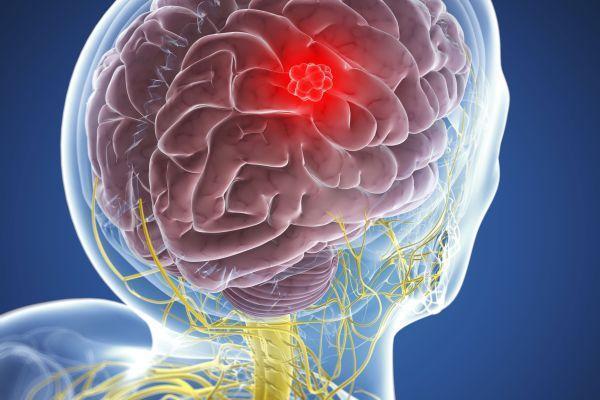 Глиобластома головного мозга – причины возникновения