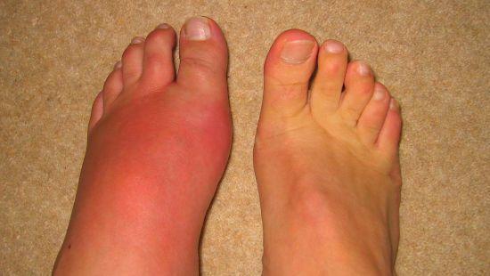 Отек стопы правой ноги: причины и лечение