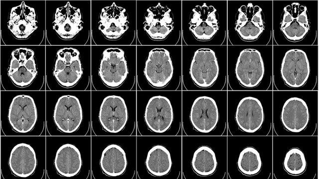 КТ головного мозга: что показывает томограмма и как делают обследование головы с контрастом?