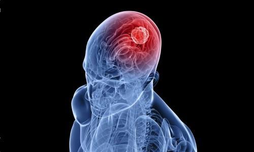 Звон в ушах и голове, причины возникновения и диагностика