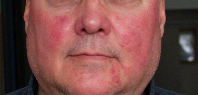 Аллергия на алкоголь: симптомы, фото и лечение