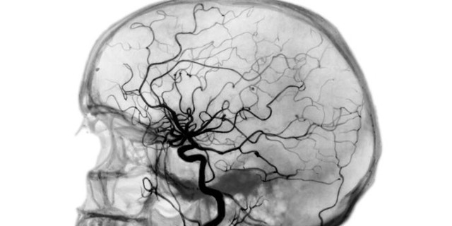 УЗДГ сосудов шеи и головы: что это такое, как делают, что показывает УЗИ головного мозга, цена, расшифровка