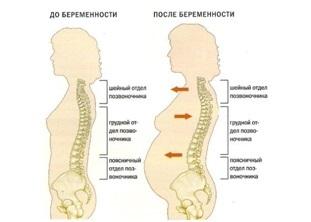 Лордоз и гиперлордоз поясничного отдела: что это такое, симптомы, лечение, фото