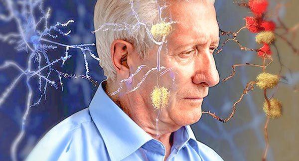 Глиоз белого вещества головного мозга: единичные и множественные очаги, признаки и прогноз жизни