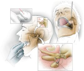 Лицевые боли: лечение невралгии тройничного нерва