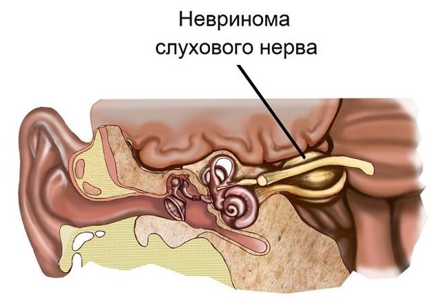 Болит голова и закладывает уши