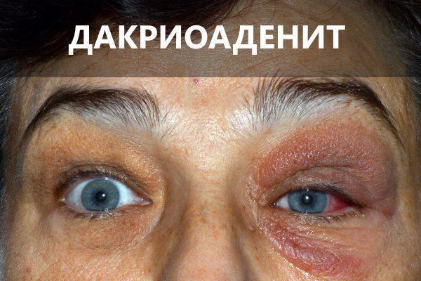 Болит глаз изнутри - что делать?