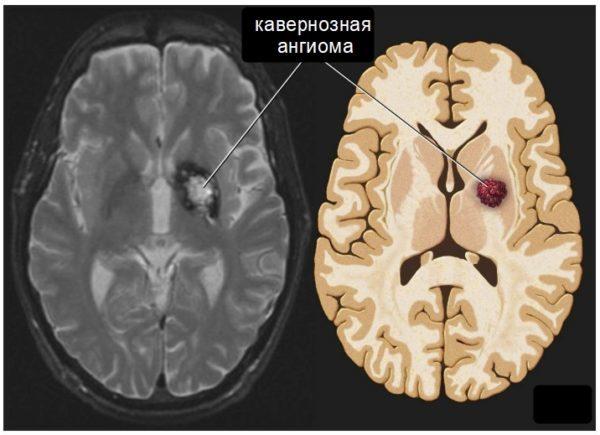 Кавернозная ангиома головного мозга: лечение, прогноз