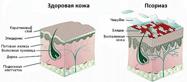 Как избавиться от псориаза навсегда?
