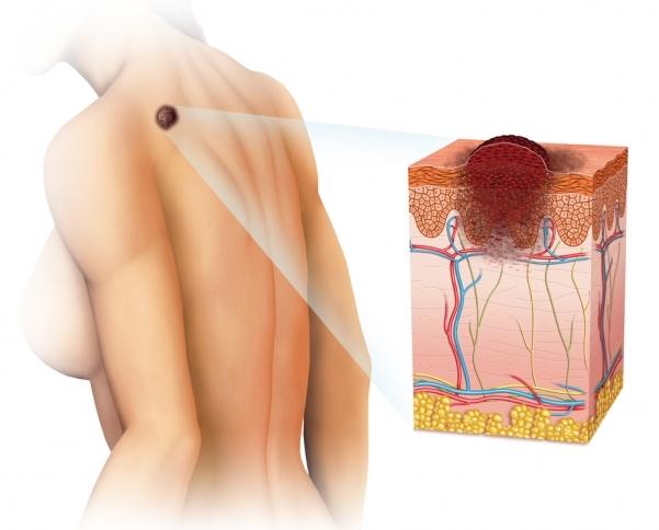 Лечение меланомы кожи: обзор различных методов