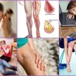 Нестенозирующий атеросклероз сосудов - признаки и лечение