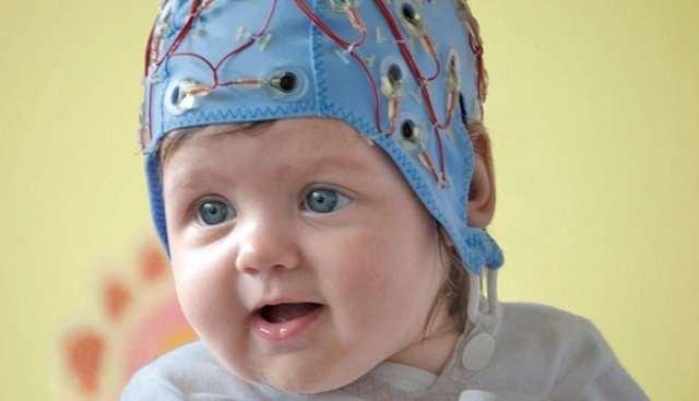 ЭЭГ головного мозга - что это такое, что показывает электроэнцефалограмма?