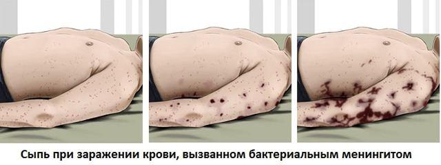 Менингококковая инфекция симптомы у взрослых