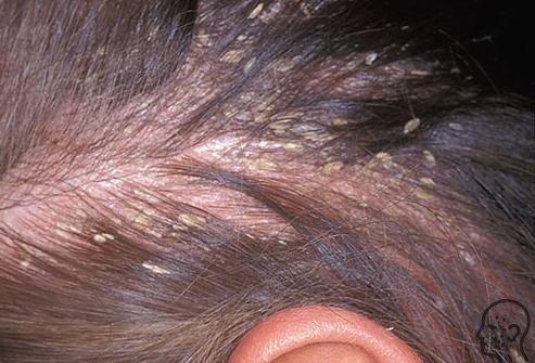 Грибок кожи головы: симптомы и лечение (фото)