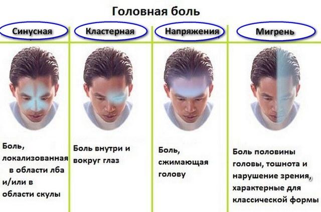 Мигренол - инструкция по применению, описание, отзывы пациентов и врачей, аналоги