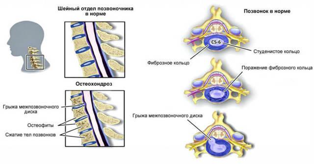 Боль в шее сбоку - причины, диагностика и лечение