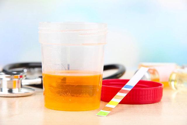 Мефедрон - в моче и в крови, скорость выведения наркотика