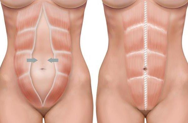 Причины и хурургическое лечение вентральной грыжи