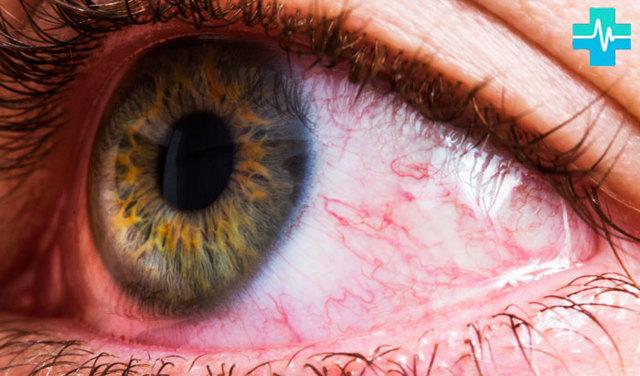 Что делать, когда обнаружился разрыв сосуда в глазу: причины, первая помощь самому себе, осложнения и прогноз, лечение в домашних условиях