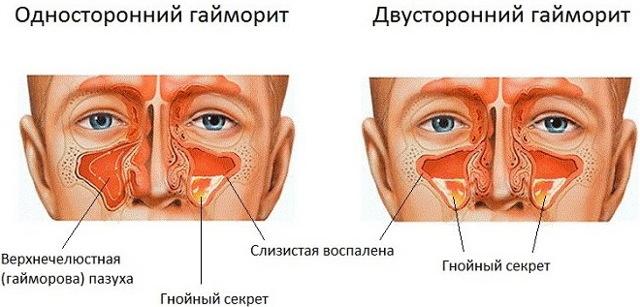 Болит челюсть возле уха при жевании: почему
