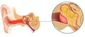 Пульсирует в ухе без боли - в чем причина, что делать, как лечить