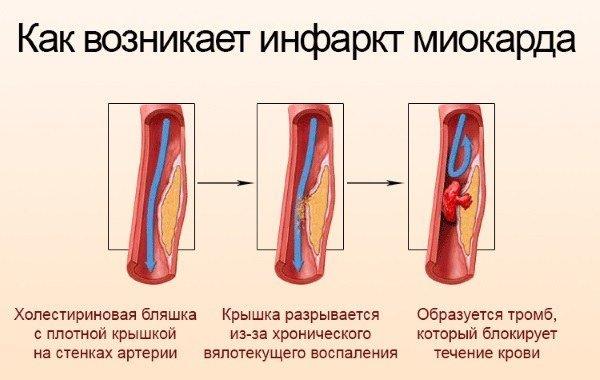 Продолжительность жизни после инфаркта миокарда