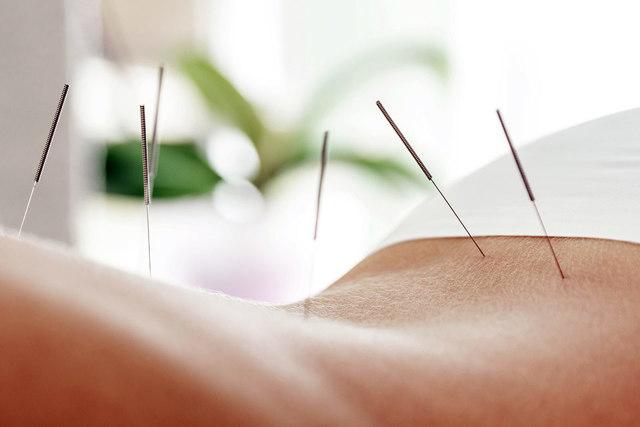 Лечение иглоукалыванием: методы, показания, противопоказания, что можно лечить иглоукалыванием?