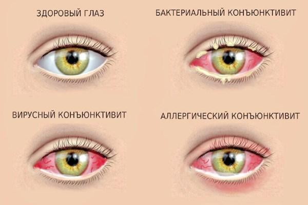 Болит веко крайний угол глаза внутри при нажатии