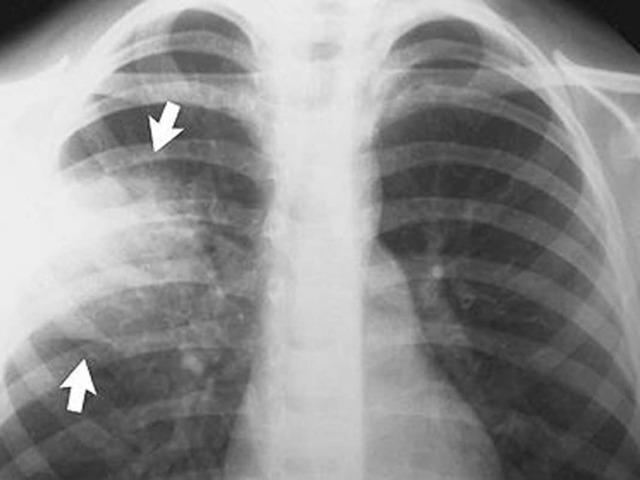 Боль в груди при температуре воздуха