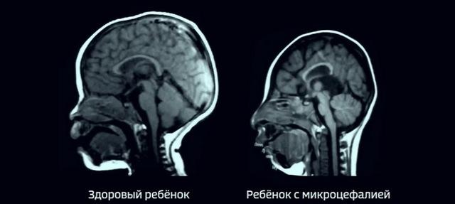Микроцефалия у детей, симптомы и продолжительность жизни