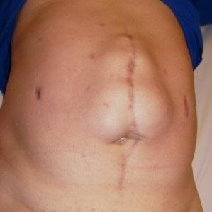 Послеоперационная грыжа после аппендицита