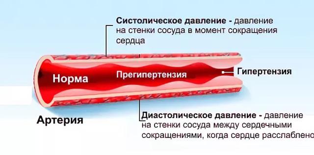 При повышенном давлении сосуды расширены или сужены