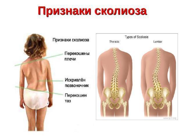 Жжение в грудине посередине - причины возникновения у мужчин и женщин, сопутствующие проявления