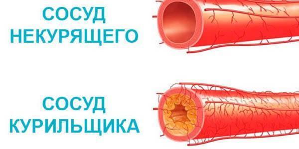 Влияние никотина на сосуды сердца, головного мога, ног
