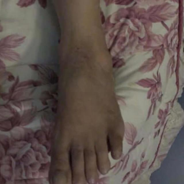 Нейрогенный дерматит (нервный): причины, симптомы, лечение