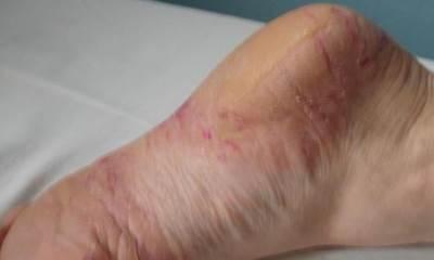 Псориаз на ногах: фото, симптомы и лечение