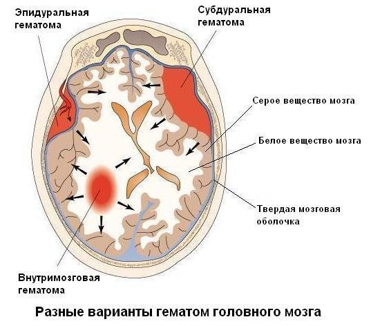 Гематома на голове после ушиба: лечение, последствия