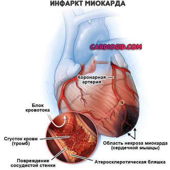 Неотложная Помощь при Инфаркте Миокарда: Алгоритм Действий