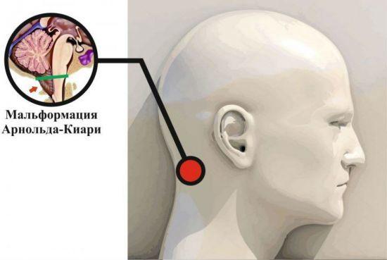 Синдром арнольда киари 1 степени