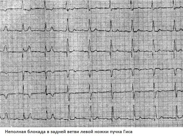 Нарушение внутрижелудочковой проводимости сердца: что это такое, лечение