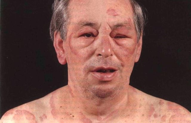 Анафилактический и болевой шок: симптомы, первая помощь