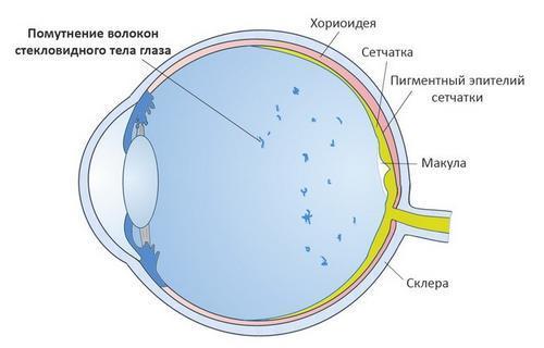 Желтые пятна перед глазами, причины, симптомы, лечение