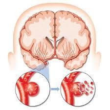 Тромболизис при онмк противопоказания и показания