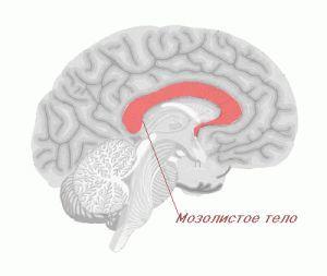 Функции и болезни мозолистого тела: агенезия, гипоплазия, дисплазия (дисгенезия)