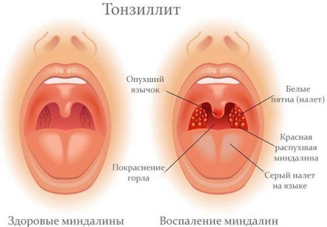 Болит подбородок и шея под горой