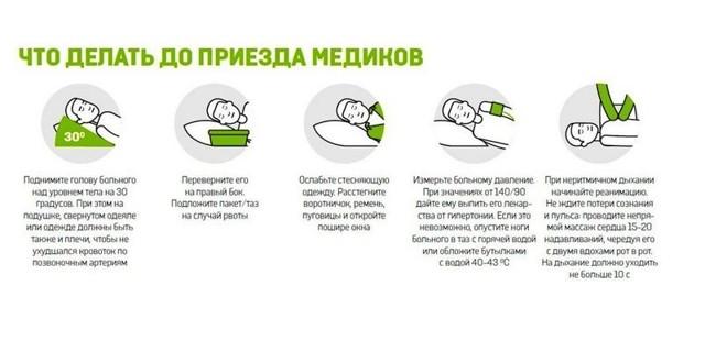 Признаки инсульта у мужчин: симптомы, первые признаки микроинсульта