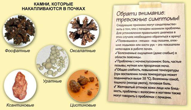 Лечебная диета при оксалатных камнях в почках: общие правила, перечень разрешенных продуктов, варианты меню - Storm24.media