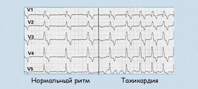Тахикардия и аритмия одновременно