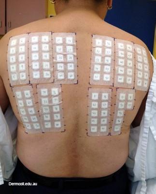 Тест на аллергию как подготовиться