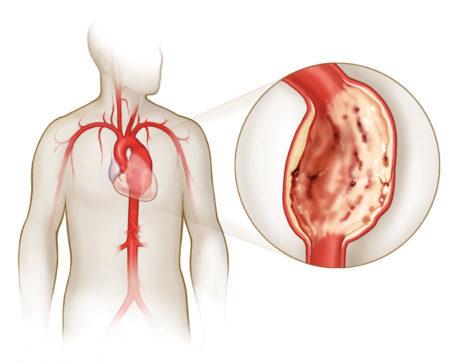Артериальное давление нижних конечностей норма